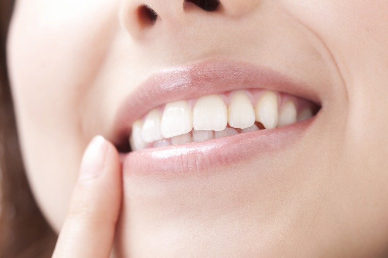周囲の歯を傷付けない