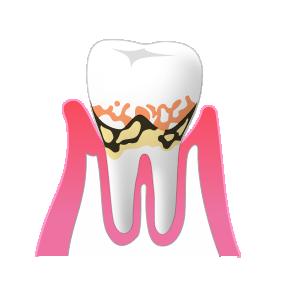 中期の歯周病